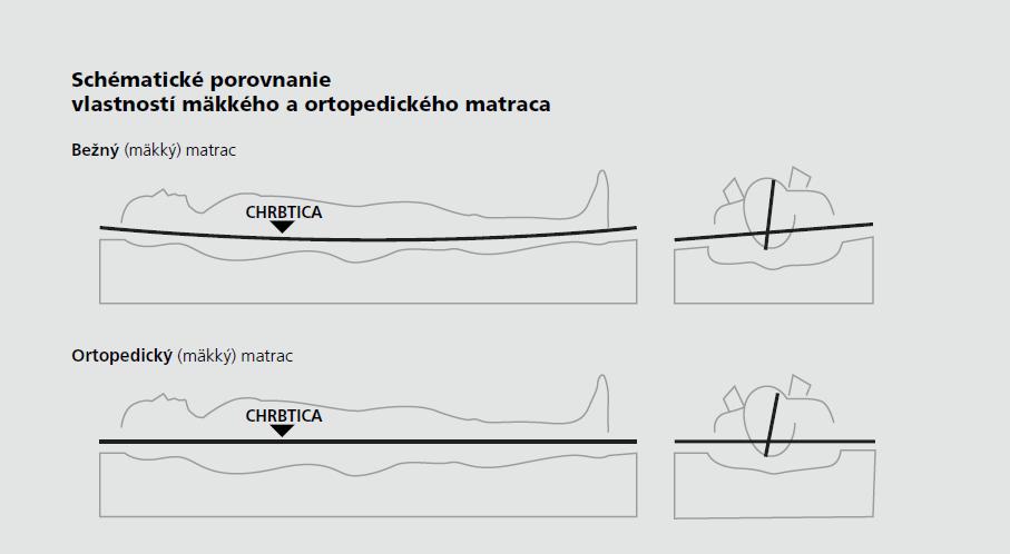 Schematicke porovnanie vlastnosti makkeho a ortopedickeho matraca